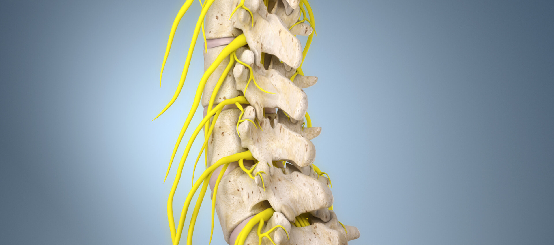 EUROPAINCLINICS - Educational animation to help better understand spinal surgery and eliminate fear